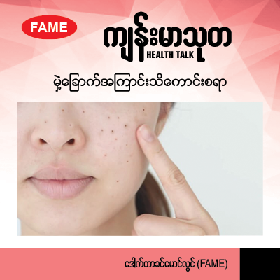 All about facial dark spots