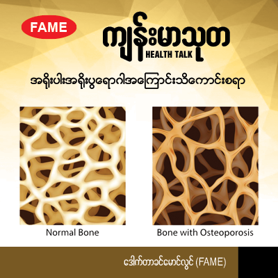 All about osteoporosis