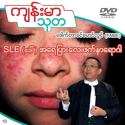 SLE (Systemic Lupus Erythematosus)