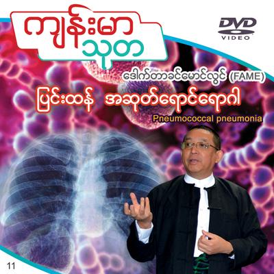 Pneumococcal pneumonia
